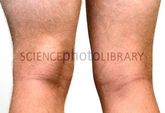 Baker's cyst. Swollen leg of a male patient with a Baker's, or popliteal, cyst, a fluid-filled lump behind the knee (at left). It is caused by the build-up of pressure within the knee joint and is often a complication of a disorder such as rheumatoid arthritis. The cyst can rupture, causing great pain. Treatment is with drainage of the fluid and anti-inflammatory drugs.