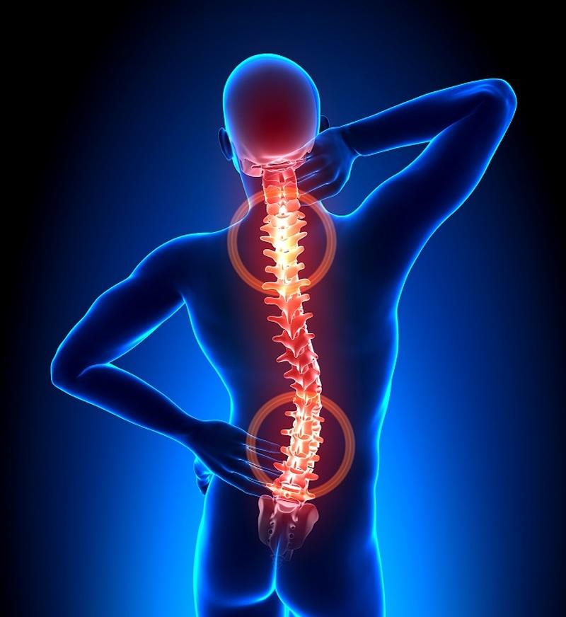 Bóle kręgosłupa | Centrum Fizjoterapii Rehabu
