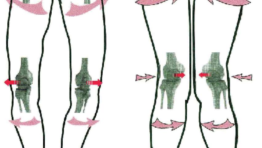 Wady kolan – koślawość i szpotawość